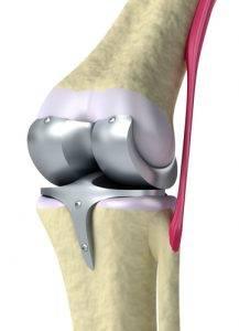 Опухоль коленного сустава лечение — Суставы