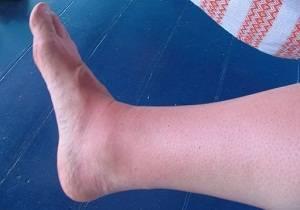 воспаление сустава стопы