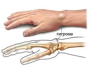 Образовавшаяся опухоль на руке представляет собой капсулу с синовиальной жидкостью