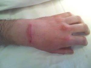 Операция по удалению гигромы кисти отзывы