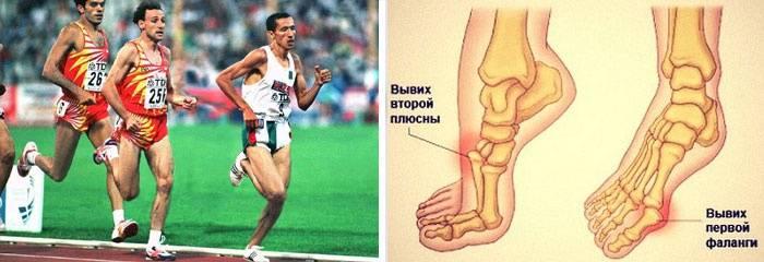 Почему болят большие пальцы ног