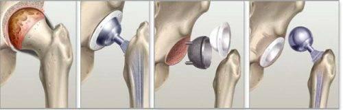 Эндопротезирование при некрозе тазобедренного сустава