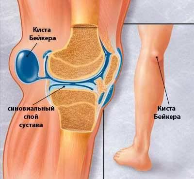 Киста бейкера коленного сустава образец