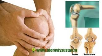 Воспаление коленного сустава симптомы