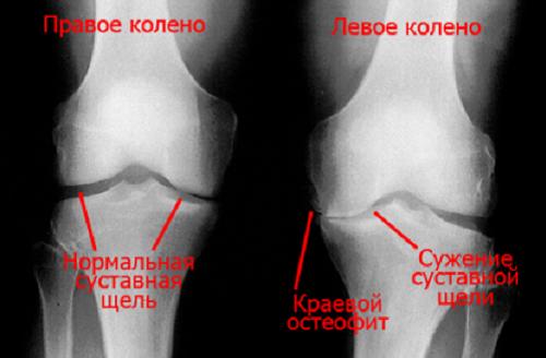 Как лечить отложение солей на ногах — Суставы