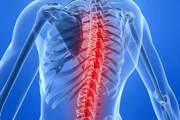Субхондральный склероз коленного сустава лечение