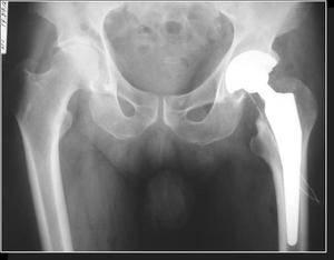 Артроз суставов - что это за болезнь