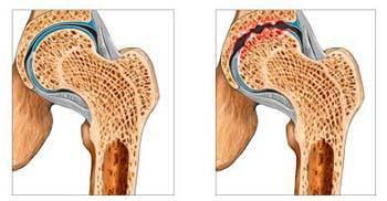 Изображение - Суставная щель коленного сустава 1мм какая стадия 59c7dc9a6731059c7dc9a67352