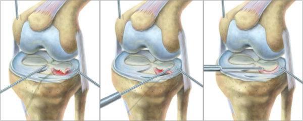 Повреждение заднего рога внутреннего мениска 3а степени по stoller лечение
