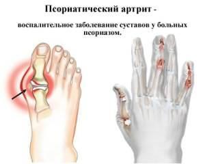 Что такое псориатиеский артрит