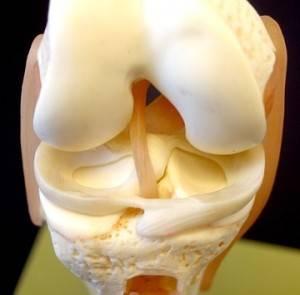 Мениск коленного сустава перед артроскопией