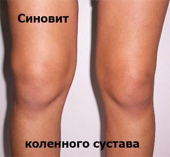 Изображение - Минимальный синовит коленного сустава 59ca66870981959ca668709868