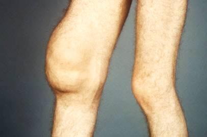 Изображение - Минимальный синовит коленного сустава 59ca6687183f859ca66871843f
