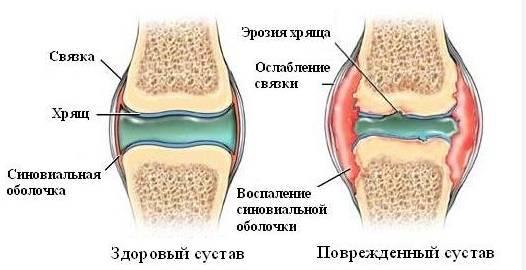 хондропротекторы для суставов