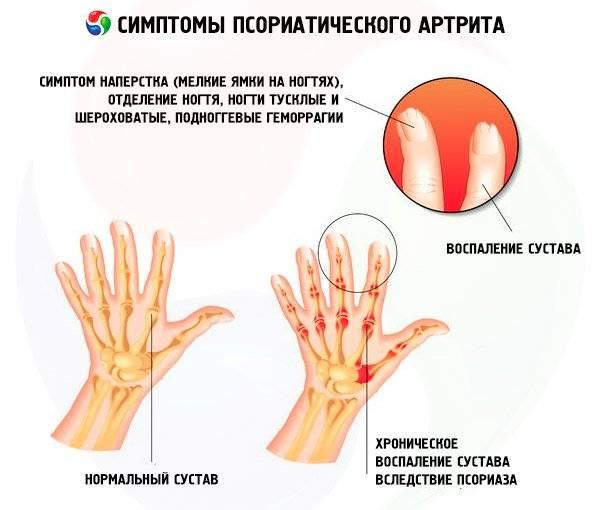чем лечить псориатический артрит кроме таблеток