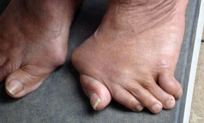Ревматоидный полиартрит ног