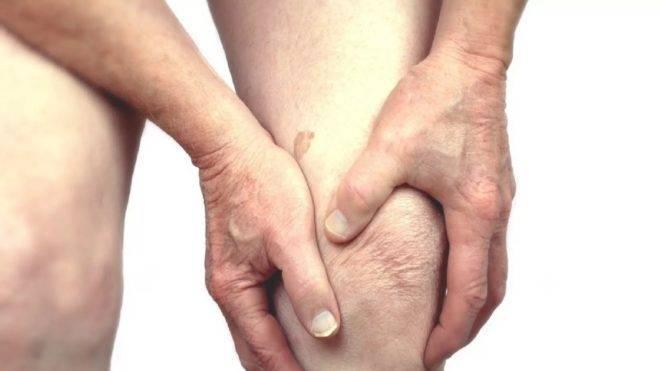 Боль и припухлость суставов при полиартрите ног