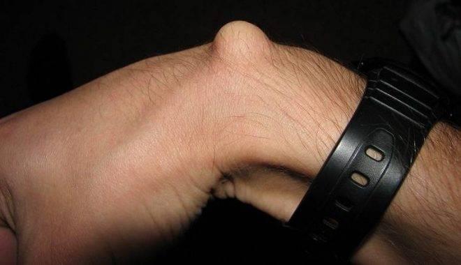 Лфк для лучезапястного сустава после удаления гигромы
