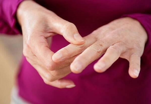 Артрит пальцев рук симптомы