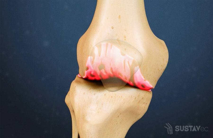Лечение скопления жидкости в коленном суставе 2-2