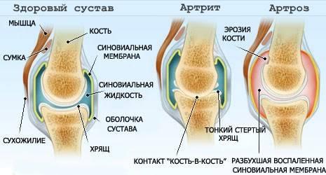 Отличия между артритом и артрозом