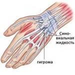 гигрома сухожилия