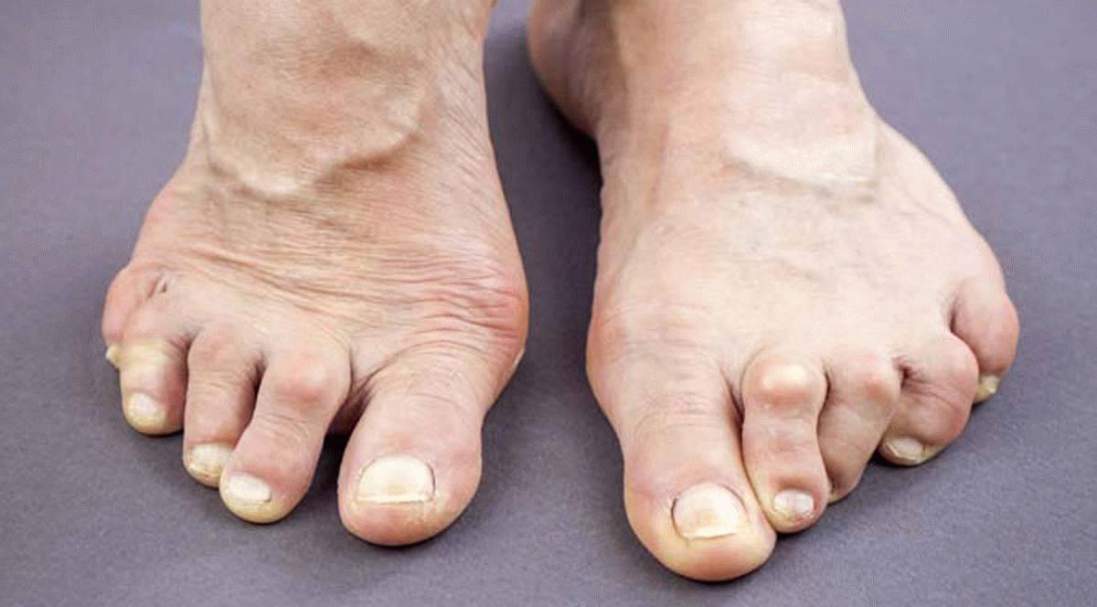 Методы лечения артрита пальцев ног в частности большого пальца используя компрессы мази массаж и другие средства