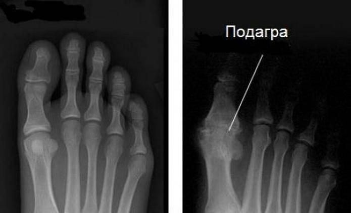 Подагра на рентгене