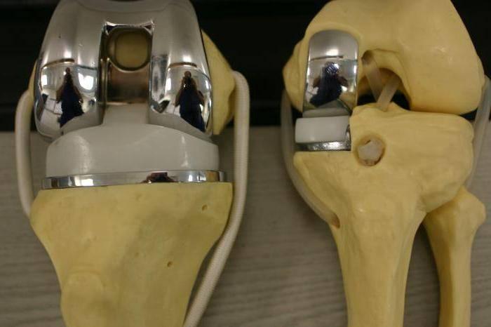 коленный сустав замена