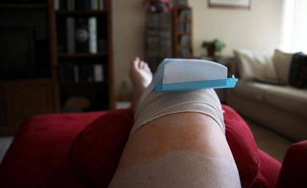 замена коленного сустава реабилитация