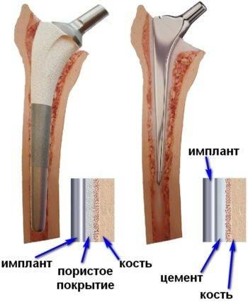 В любом протезе есть несколько компонентов