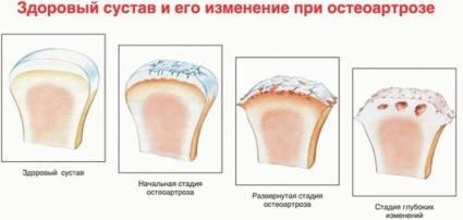 Здоровый сустав и его изменения при остеоартрозе