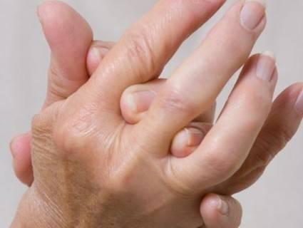 Пустдеформирующих пальцы узелков Гибердена и Бушара