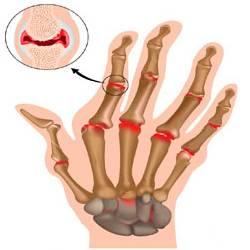 Суставы, пораженные артритом