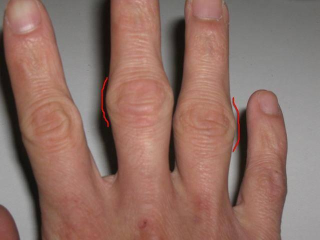 Лечение суставов на пальцах рук народными средствами в домашних условиях
