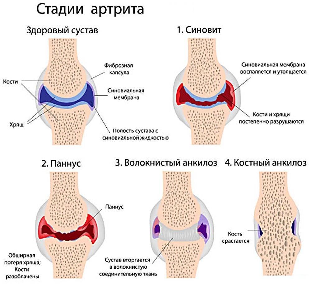 Как протекает заболевание сустава