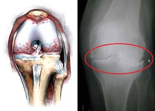 artroz 0061 Артрит коленного сустава: опасности которые подстерегают