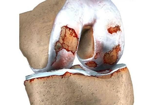 primer artrita Артрит коленного сустава: опасности которые подстерегают