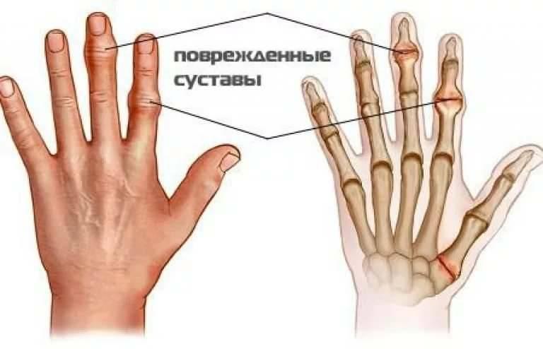 Народное средство при артрозе пальцев рук