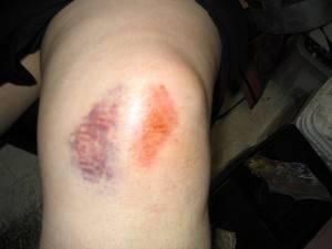 Из-за сильной травмы больной может надолго потерять подвижность колена
