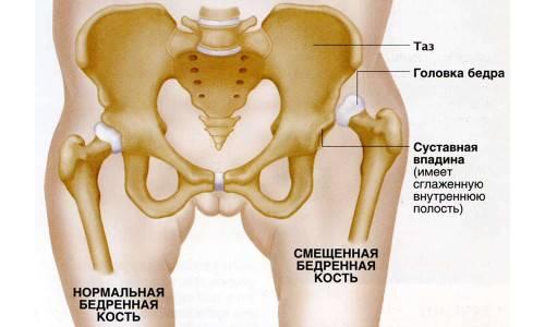 Схема дисплазии тазобедренного сустава