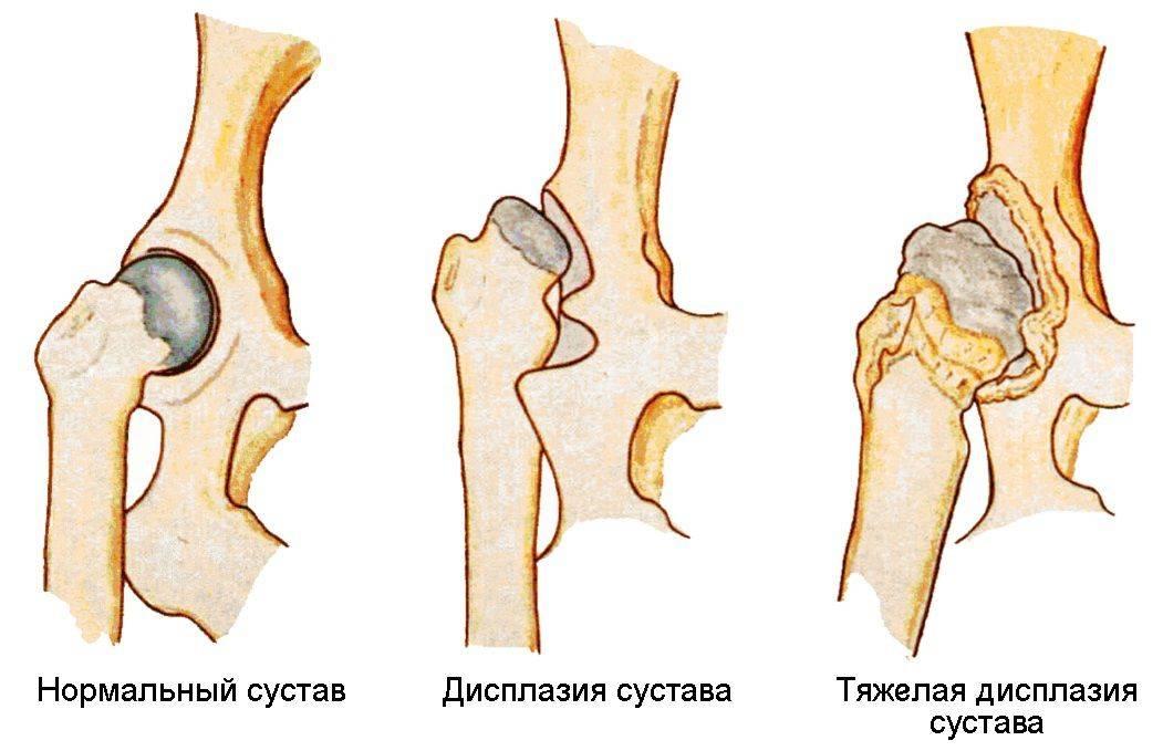 Упражнения при дисплазии тазобедренных суставов у взрослых