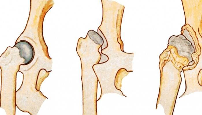 dDisplaziya-tazobedrennogo-sustava