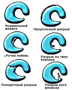 формы разрыва менисков