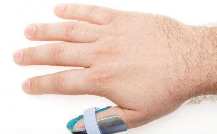 вывих сустава пальца руки