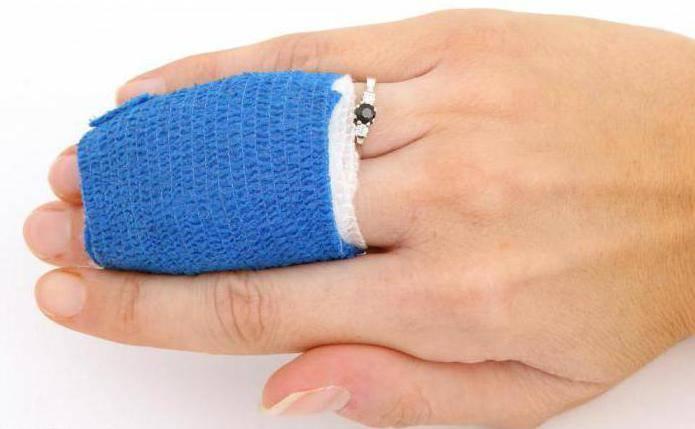 вывих большого пальца руки лечение
