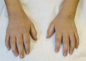 yuvenilnyj-revmatoidnyj-artrit