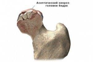 асептический некроз