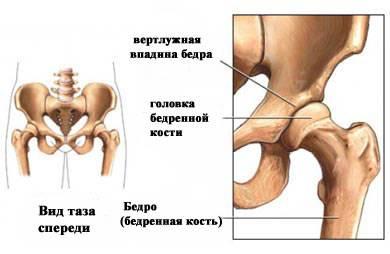 Иллюстрация поражения бедренной кости