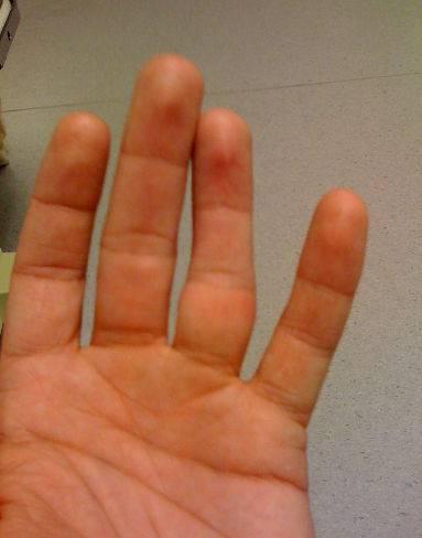 вывих среднего пальца
